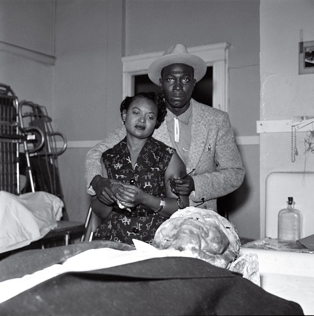 Picture of Emmett Till 1955 mutilated by lynching